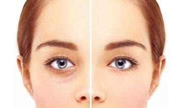 как выглядят после блефаропластики глаза