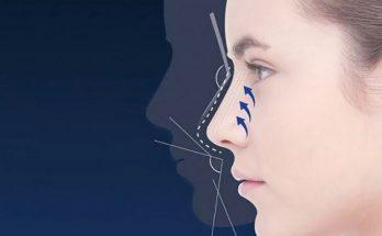 безоперационна ринопластика носа