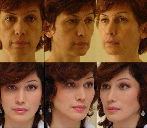 липофилинг лица до и после