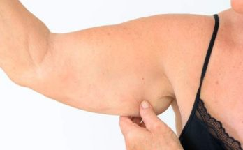 брахиопластика рук