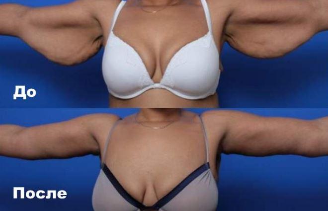 брахиопластика рук фото до и после